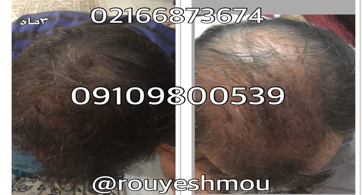 قرص برای رشد سریع مو
