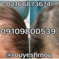 photo 2017 11 24 01 27 20 120x120 - روشهای درمان درست ریزش مو