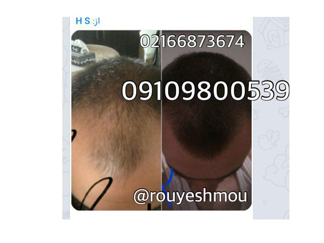 رشد سریع مو با روغن بادام تلخ