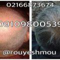 photo 2017 11 24 01 27 45 120x120 - روش های افزایش رشد مو دکترنوروزیان