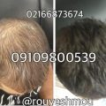 رشد سریع موهای ریخته شده با ماسک موی گیاهی