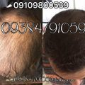 photo 2017 11 05 19 35 25 120x120 - روشهای درمان درست ریزش مو