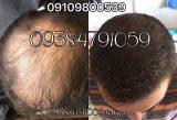 خرید محلول رشد مو
