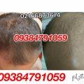 photo 2018 06 14 20 44 15 120x120 - روشهای درمان درست ریزش مو