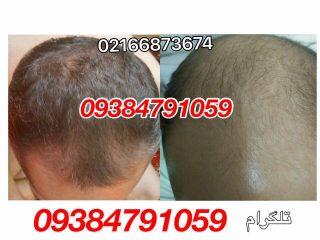 برای درمان ریزش مو چه کنیم
