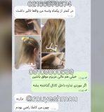 راه های درمان ریزش مو در زنان