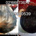 photo 2018 06 14 20 45 33 120x120 - روشهای درمان درست ریزش مو