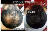 10 ماده غذایی موثر برای درمان ریزش مو