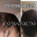 ریزش مو و کمبود آهن