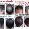 روش های زنانه مقابله با ریزش مو