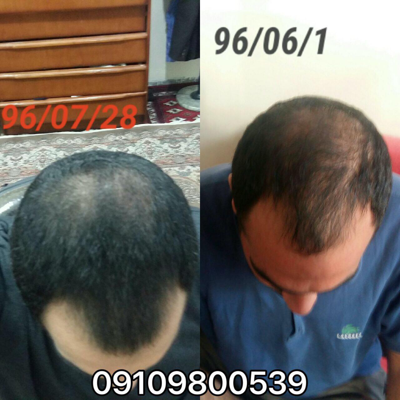 ترمیم موهای آسیب دیده با روشهای طبیعی