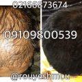 ریزش موی سکه ای از تشخیص تا درمان