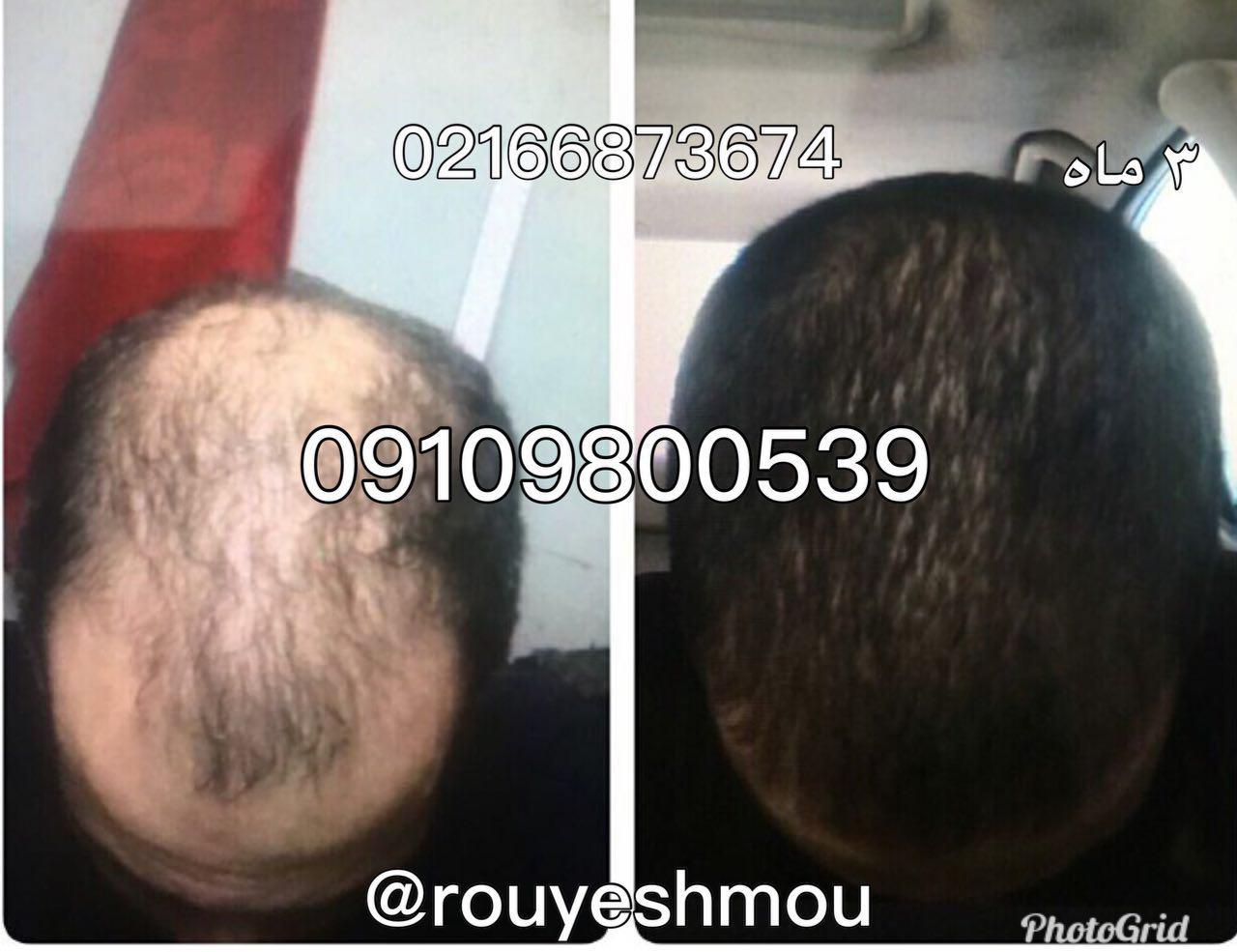 علت ریزش مو وچندراهکار برای جلوگیری از ریزش مو