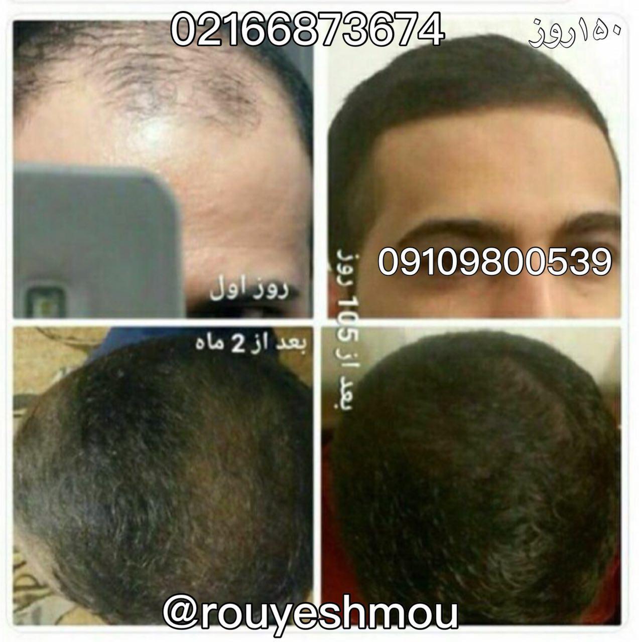 ریزش مو در زنان و مردان و تفاوت های آن