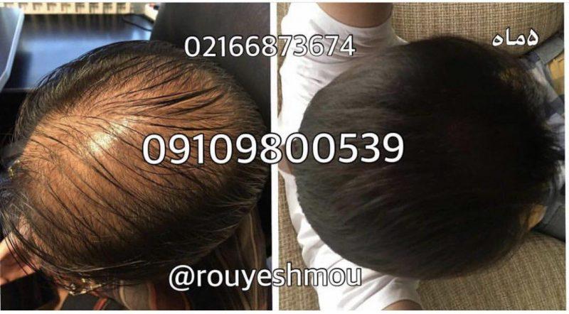 photo 2018 06 14 20 46 27 800x442 - روشهای درمان درست ریزش مو