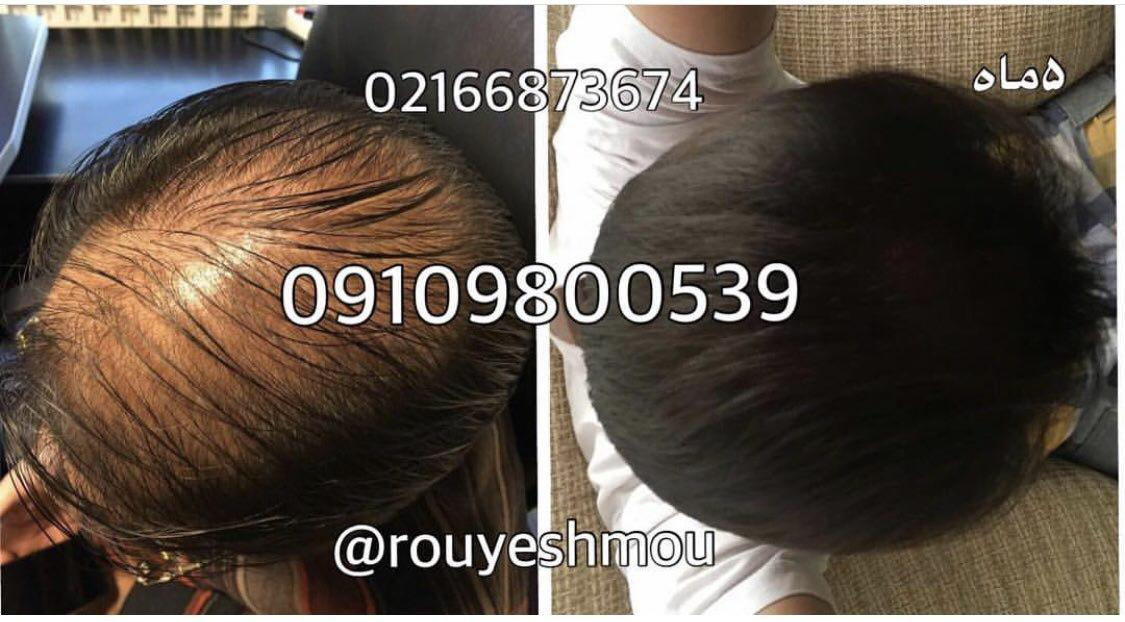 روشهای درمان درست ریزش مو