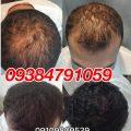 درمان خانگی ریزش مو و رشد مجدد موها
