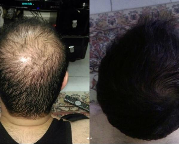 راههای کم هزینه برای درمان ریزش مو با شرکت رویش سبز لاوین