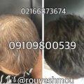 photo 2018 07 14 17 57 47 120x120 - روشهای درمان درست ریزش مو