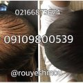 photo 2018 07 14 17 58 44 120x120 - روشهای درمان درست ریزش مو