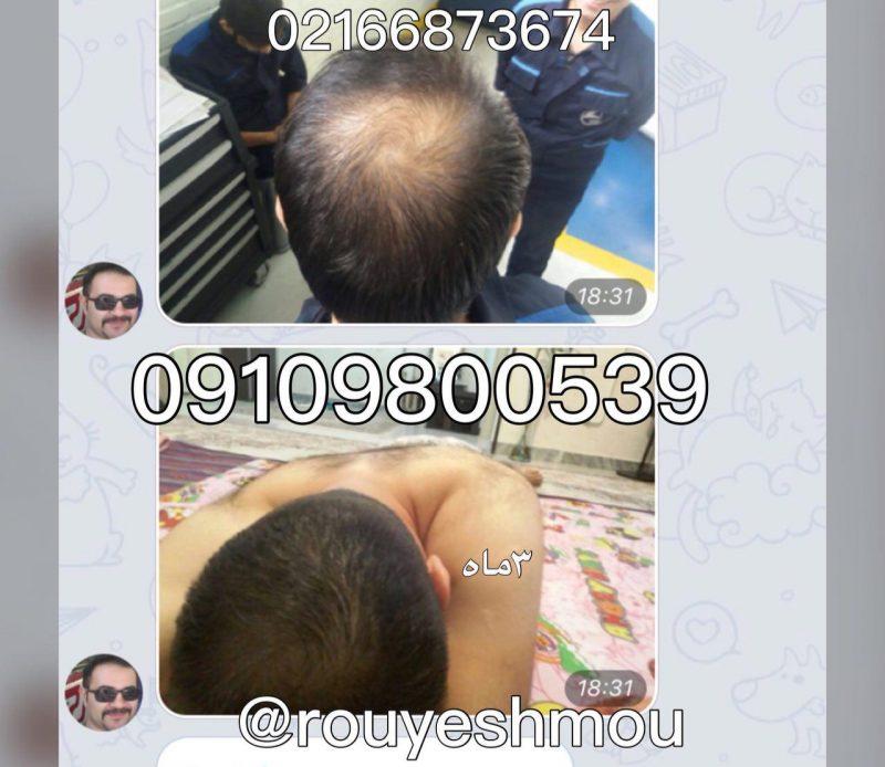 photo 2018 07 14 17 58 47 800x694 - راه حل درمان ریزش موبا دکتر نوروزیان
