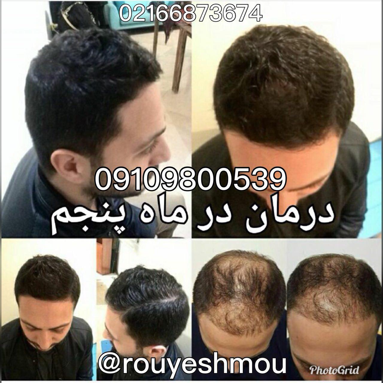 درمان قطعی ریزش مو با محلول رویش مو