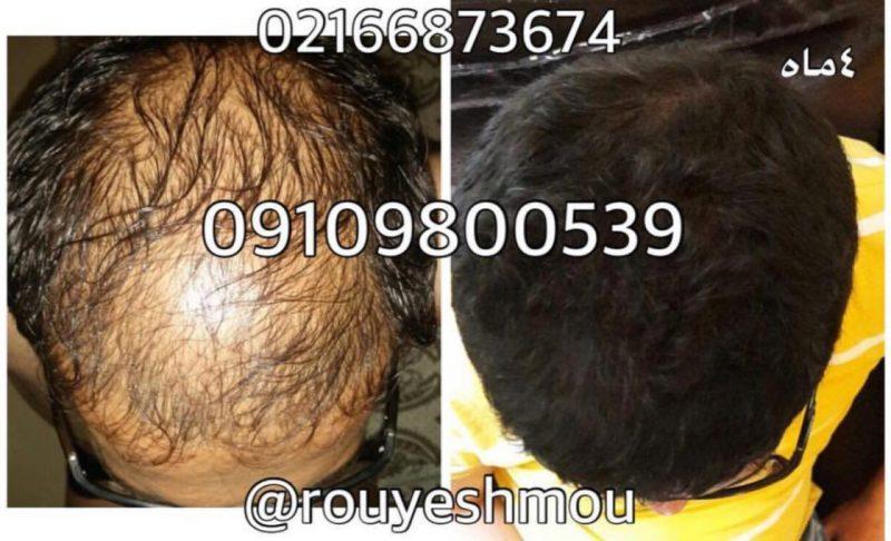 photo 2018 07 14 17 59 17 800x486 - درمان ریزش مو مردان وزنان با دکترنوروزیان