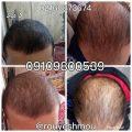 photo 2018 07 14 17 59 38 120x120 - روشهای درمان درست ریزش مو