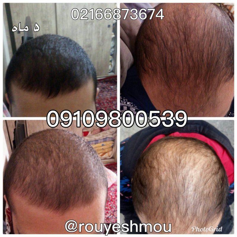 photo 2018 07 14 17 59 38 800x800 - درمان موثر ریزش مو دکتر نوروزیان