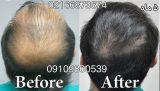 رویش مو به روش طبیعی