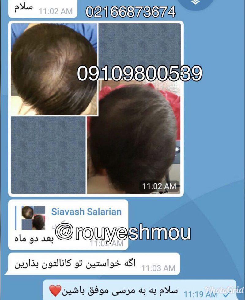 photo 2018 08 13 09 48 16 800x977 - 7معجزه طبیعی برای زنده شدن موهایتان