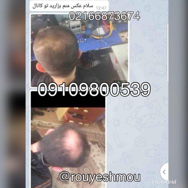 photo 2018 08 13 09 48 21 800x800 - موهای خود را تقویت کنید