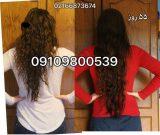 راهکارهای مقابله با ریزش مو در بانوان