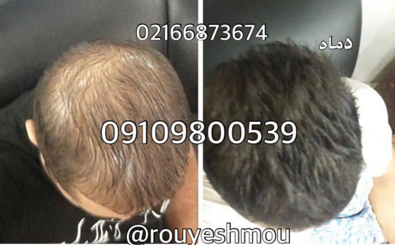 photo 2018 08 13 09 53 04 800x497 - ریزش مو در بانوان و آقایان و راهکار های درمانی آن