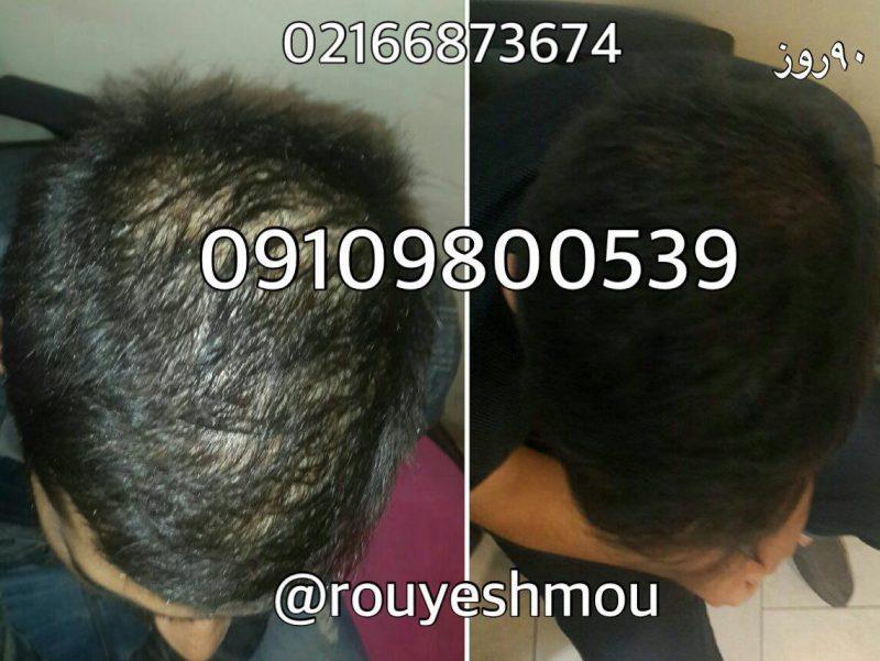 photo 2018 08 13 09 53 47 800x601 - معجزه ی گیاهان دارویی در درمان ریزش مو
