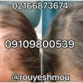 علل ریزش مو در بانوان