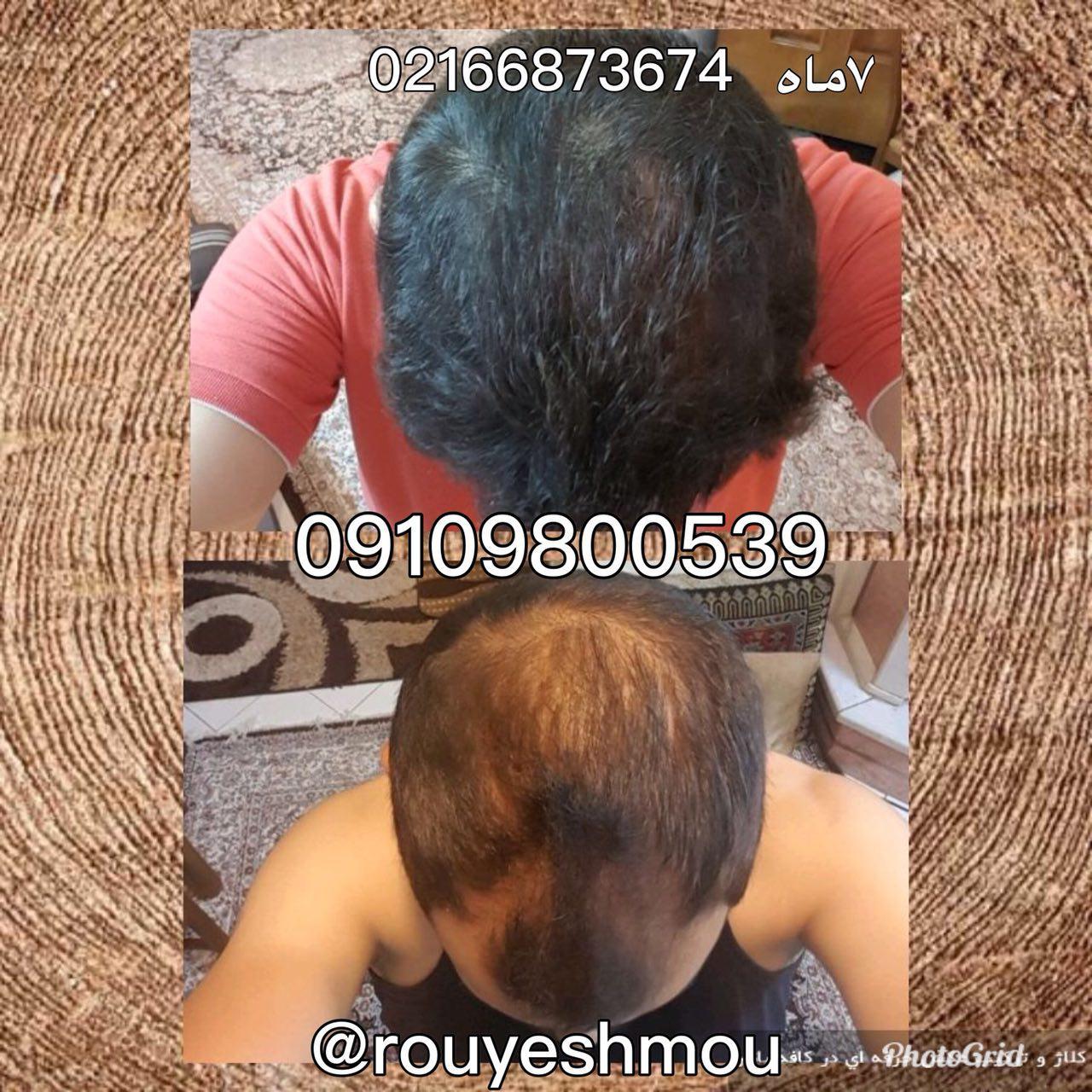تقویت کننده های طبیعی پیاز موی سر