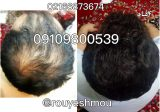 ریزش مو و راهکار های درمان