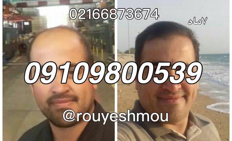 photo 2018 08 13 09 48 37 1 800x486 - ابروهای خود را پرپشت کنید
