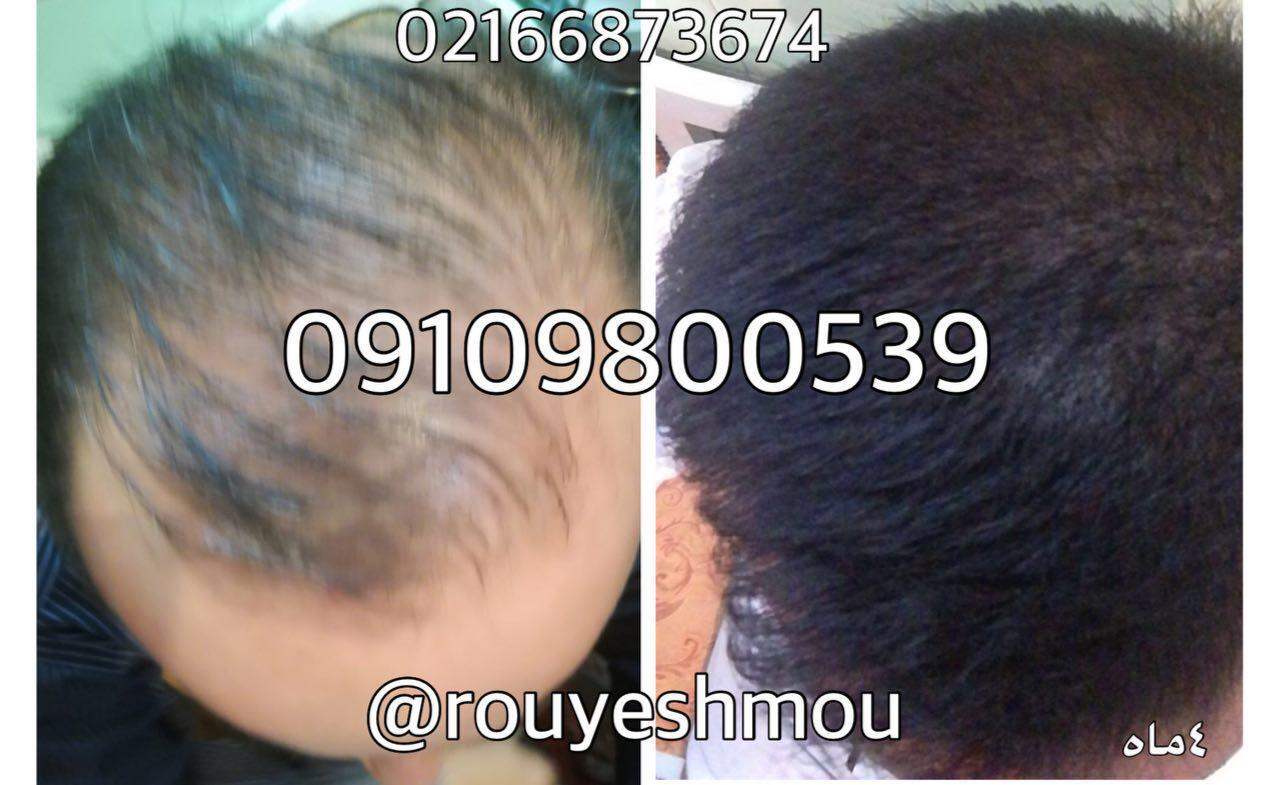 درباره ی ریزش مو و علل آن بیشتر بدانید