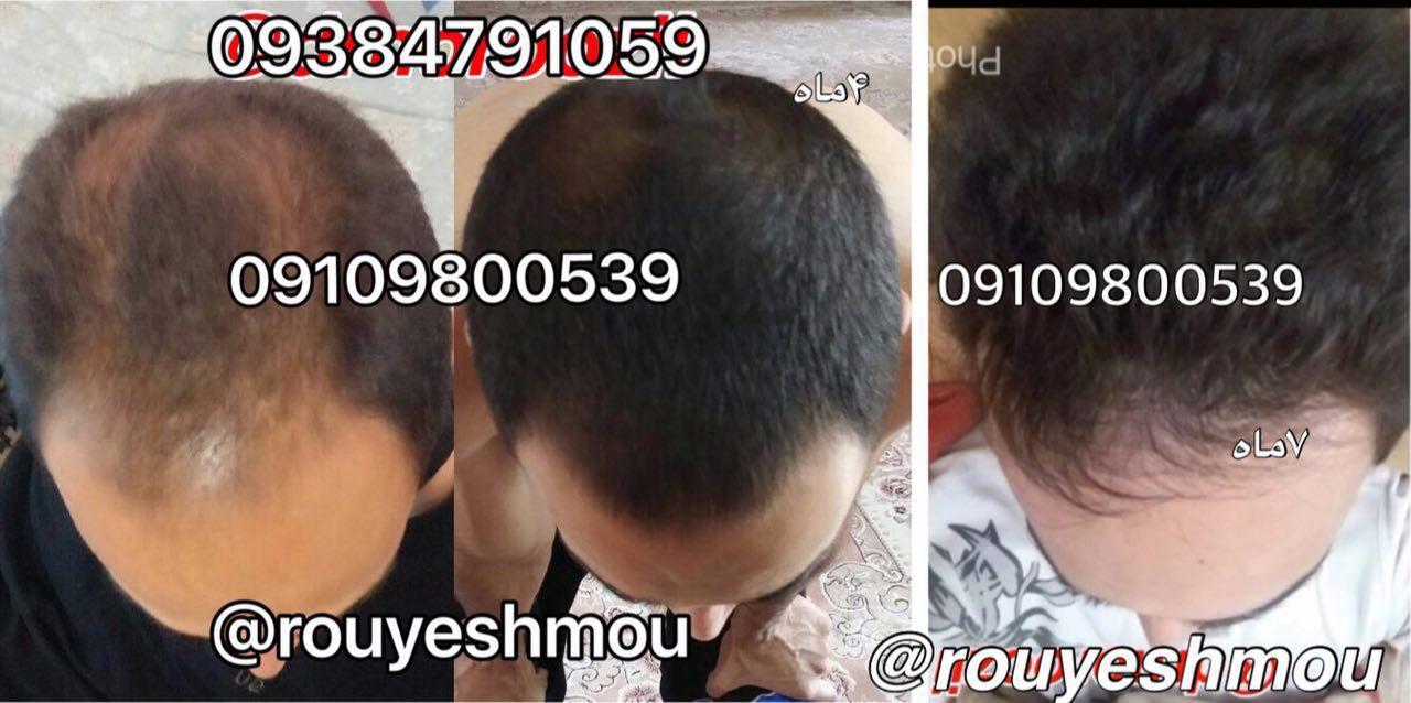 با پیاز در رشد موی خود معجزه ایجاد کنید