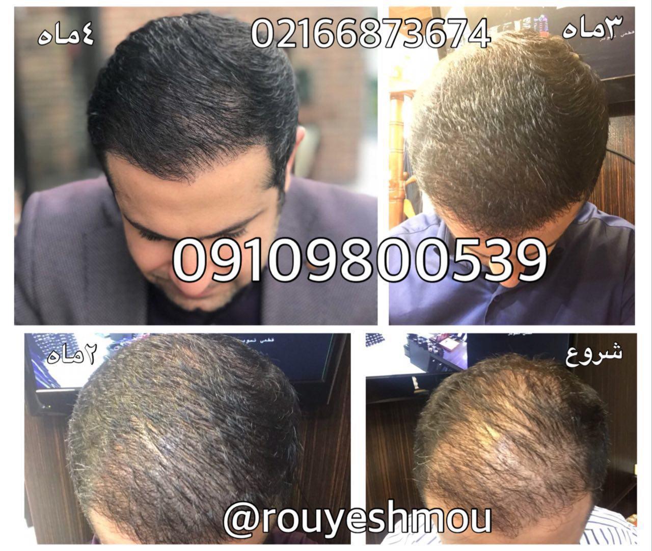 محلول رشد مو