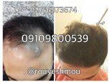 درمان ریزش موهایتان را پیش ما بیابید