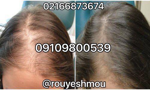 راهکار های معجزه آسای افزایش رشد موی سر