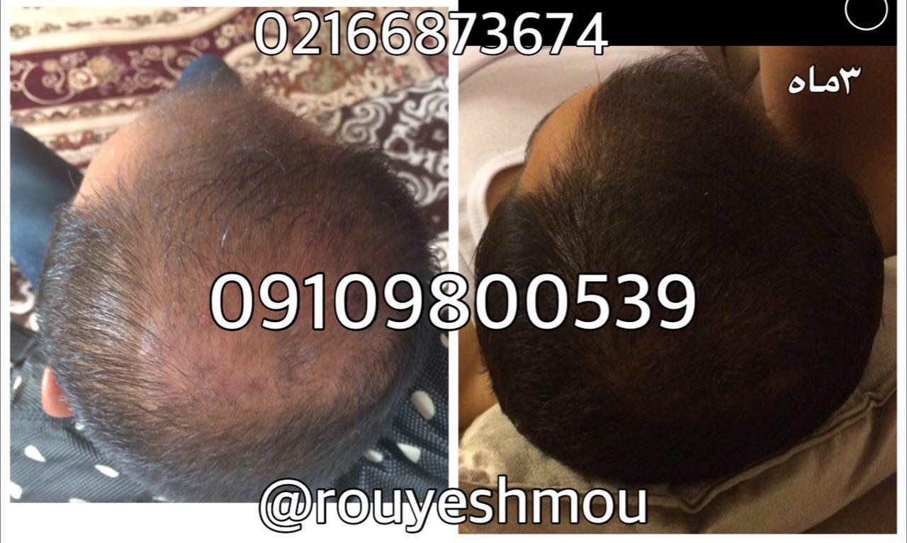 ریزش مو یا رشد مو کدام را ترجیح میدهید؟