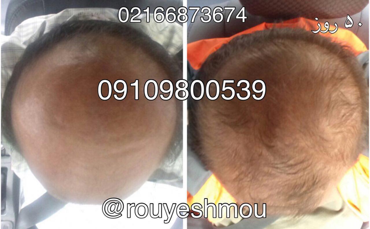 مانع ریزش موی خود شوید