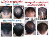 دانستنی هایی درباره رشد سریع موی سر