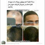 تاثیر قرص بر افزایش رشد موی سر