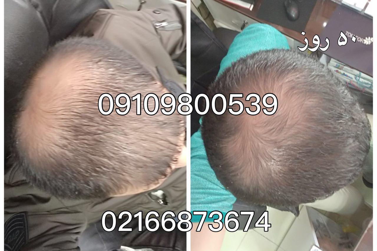 معجزه ی قرص زینک بر رویش موی سر