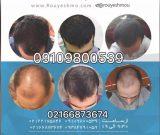 معجزاتی برای افزایش رشد موهایتان را پیش ما بیابید